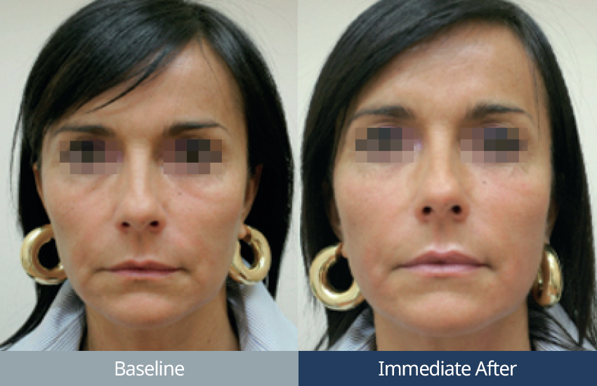 ultraformer-ultherapy-face-dubai-wellbeing-medical-centre-olimpia-carmen-bf_01