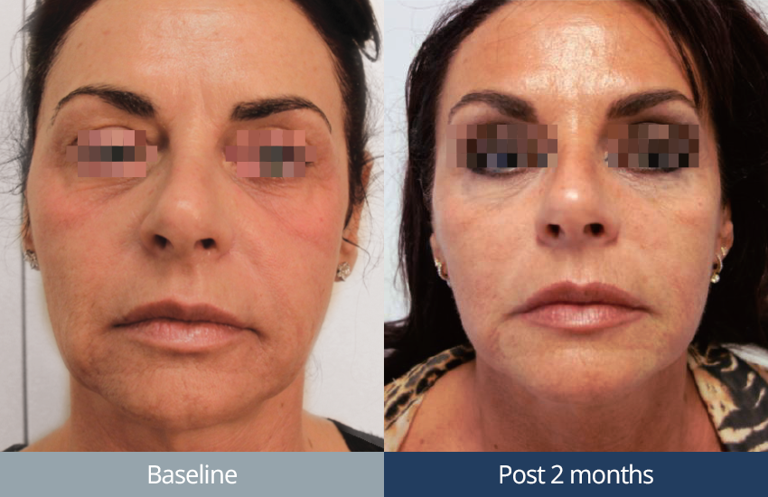 ultraformer-ultherapy-face-dubai-wellbeing-medical-centre-olimpia-carmen-bf_08