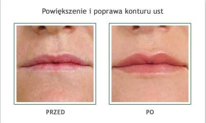powiekszenie-ust-melitus