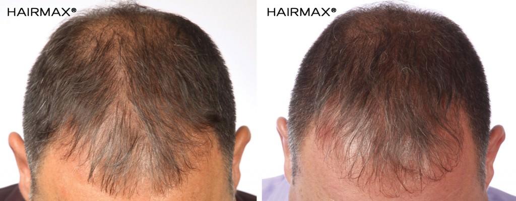 hairmax_efekty-1