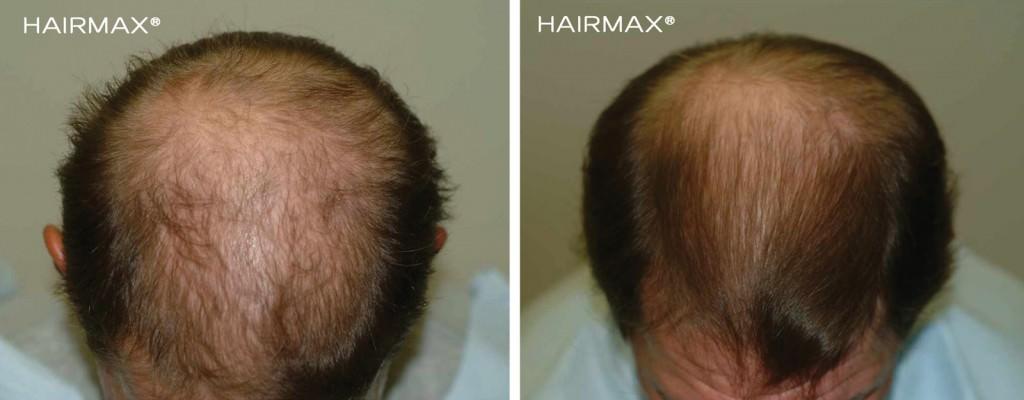 hairmax_efekty-2