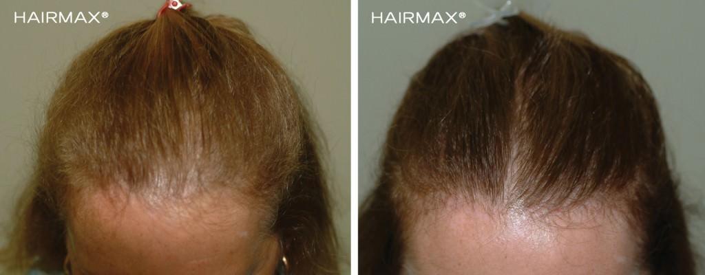 hairmax_efekty-3