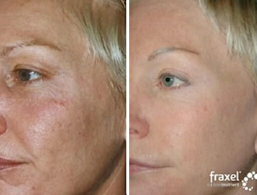 laser fraxel - efekty przed i po