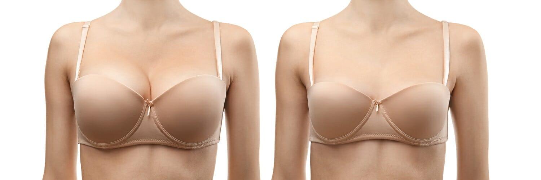 powiekszanie piersi tluszczem - warszawa