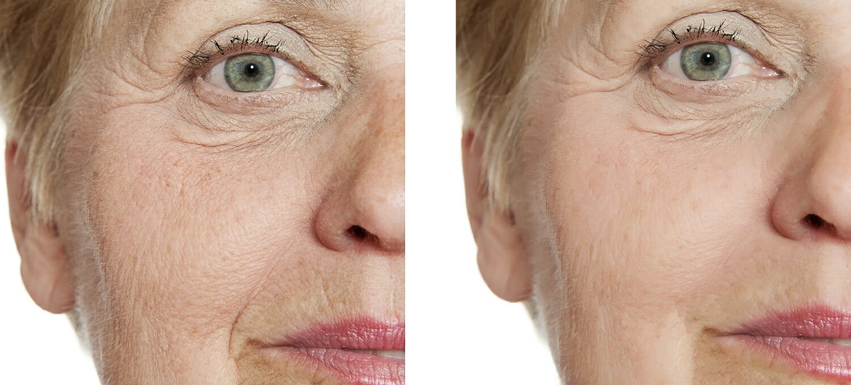 mezoterapia - efekty